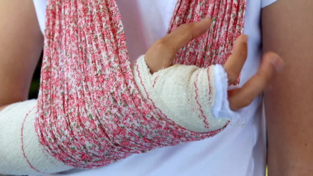 close-up of the arm of a child who has a cast and shows how to move the fingers - ギプス点の映像素材/bロール