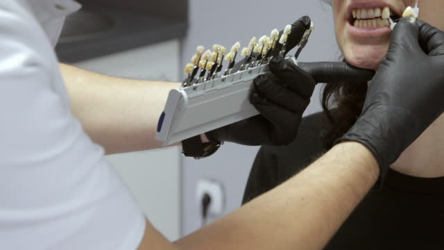 close-up on choosing veneers on patient - porcelain stock videos & royalty-free footage