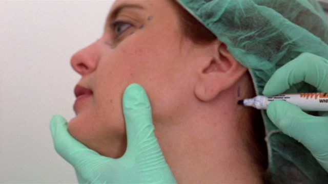 close-up plastic surgeon drawing dotted lines on woman's neck/ panama city, panama  - plastic surgery stock videos and b-roll footage