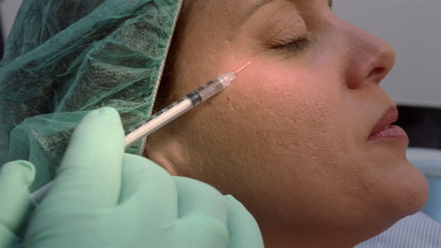 vídeos y material grabado en eventos de stock de close-up plastic surgeon injecting botox into woman's temple/ panama city, panama  - inyectar