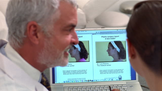 close-up plastic surgeon showing woman before and after photos of her nose after cosmetic surgery/ panama city, panama  - plastic surgery stock videos and b-roll footage