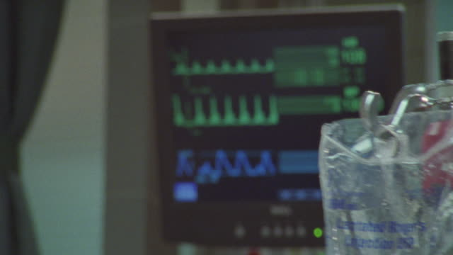 a close-up shot of a heart monitor. - iv drip stock videos & royalty-free footage