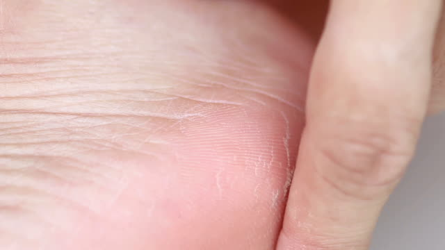 closeup view of cracks on a heel - human foot stock videos & royalty-free footage