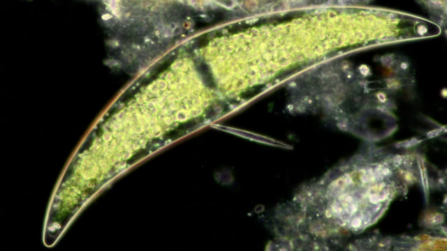 """closterium desmid, light microscopy"" - alga verde video stock e b–roll"