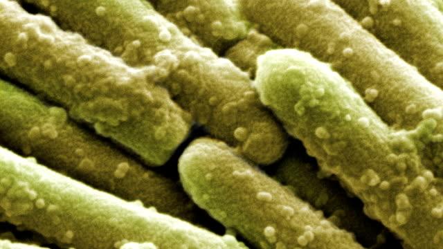 stockvideo's en b-roll-footage met clostridium difficile bacteria, sem - lessenaar