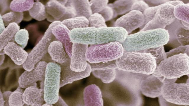 """vídeos y material grabado en eventos de stock de """"e coli bacteria, sem"""" - bacteria"""