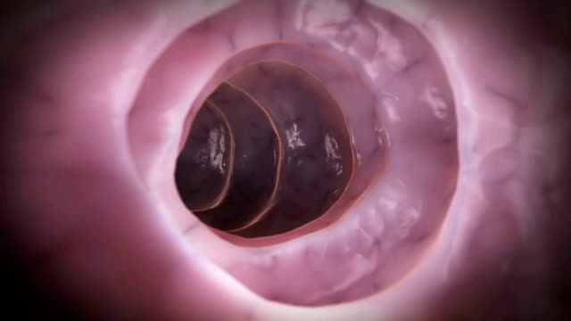 stockvideo's en b-roll-footage met colon cancer - biomedische illustratie