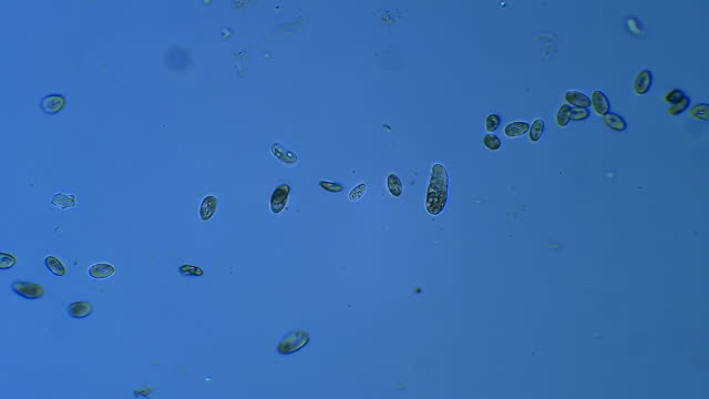 colony of ciliates microorganisms floating in water - magnification stock videos & royalty-free footage