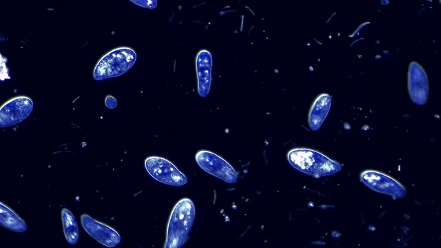 colony of microorganisms siliates, 4k, 60fps - botany stock videos & royalty-free footage