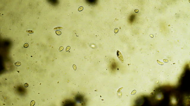 colony of microorganisms - bacillus subtilis stock videos & royalty-free footage