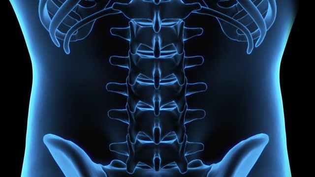 腰椎の3dコンピュータ断層撮影と腰椎のx線撮影で、高さから落ちた後の眼腔鏡骨折の外傷を示す。医療従事者の概念。 - 頸椎点の映像素材/bロール