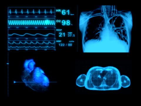 コンピュータアニメーション ekg 医療表示モニター - 生理学点の映像素材/bロール