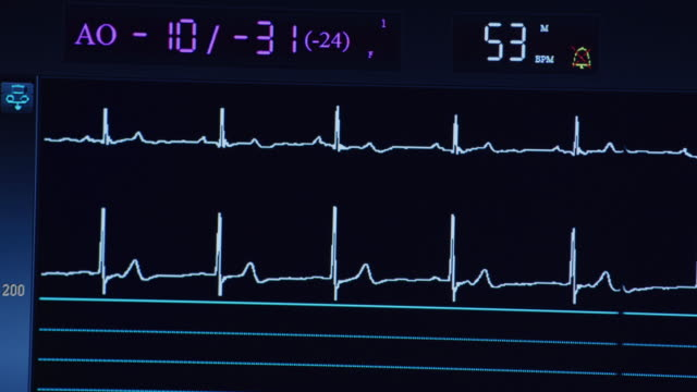 vídeos de stock, filmes e b-roll de computer ekg screen during a cardiac catheterization procedure. - ataque cardíaco