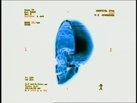 computer generated image close up half of human skull turning 180 degrees back and forth with words + measurements to side - biomedical illustration stock videos & royalty-free footage