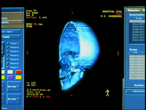 computer generated image close up half of human skull turning 180 degrees back and forth with charts on side of monitor - biomedical illustration stock videos & royalty-free footage
