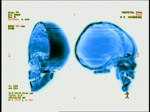 computer generated image close up human skull halves turning 180 degrees back and forth with words + measurements to side - biomedical illustration stock videos & royalty-free footage