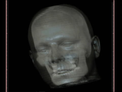 computer generated image close up transparent human face rotating with skull visible inside - biomedical illustration stock videos & royalty-free footage
