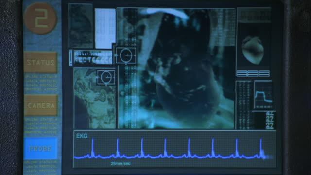 CU Computer monitor displaying medical X-ray