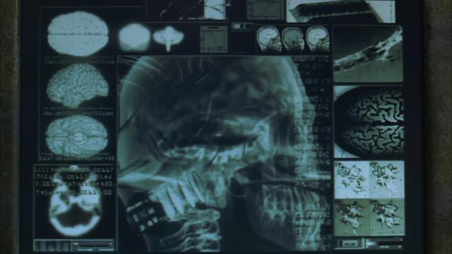 CU Computer monitor displaying X-ray of human skull