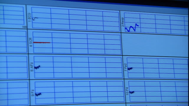 a computer monitor displays eeg results. - computer monitor stock videos & royalty-free footage