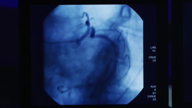 vídeos de stock, filmes e b-roll de computer monitor featuring a cardiac catheterization procedure; a catheter is inserted clearing the arterial obstruction. - heart attack