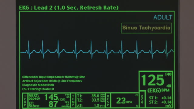 a computer screen monitoring a heartbeat. - pulse trace stock videos & royalty-free footage