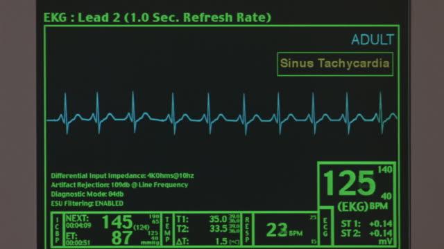 vidéos et rushes de a computer screen monitoring a heartbeat. - rythme cardiaque