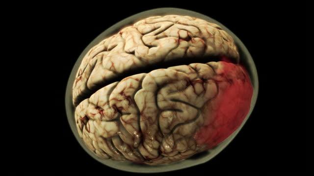 a computer-generated model of a human brain turns red. - emisfero cerebrale video stock e b–roll
