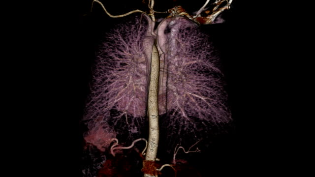 Computerized Tomography Angiogram