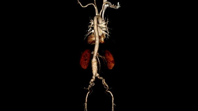 stockvideo's en b-roll-footage met computerized tomography angiogram - nierslagader