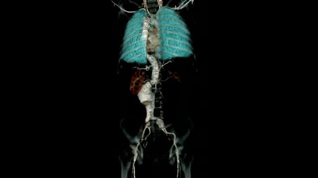 Computergesteuertes Tomography Angiogram