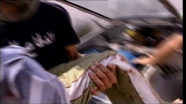 vídeos de stock e filmes b-roll de day 17 shelling of southern lebanon continues injured young boy lifted from boot of car by members of unidentified television crew young boy with... - elbow