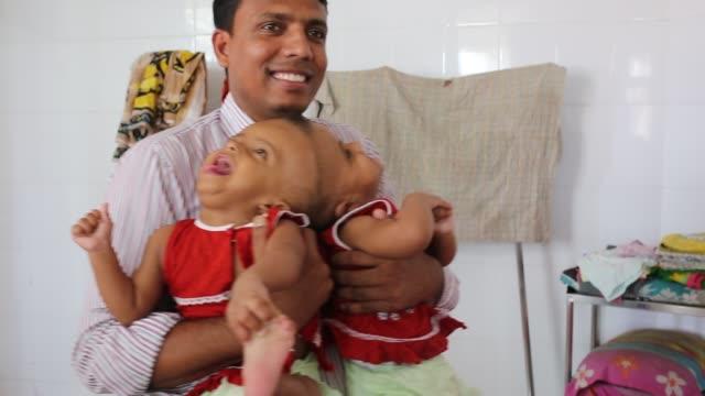 conjoined twin girls rabeya islam and rokeya islam play at a hospital in dhaka, bangladesh on july 31, 2017. taslima khatun, a school teacher, gave a... - human interest stock videos & royalty-free footage