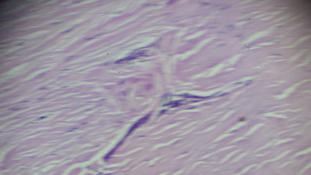connective tissue, hyaline degeneration biopsy under light microscopy zoom in different areas - stain test stock videos & royalty-free footage