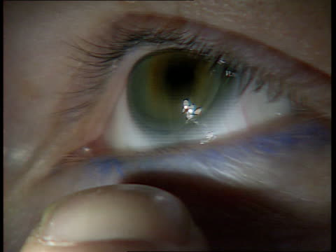 stockvideo's en b-roll-footage met health fears ltn u'lay lib man looking into eyepieces of equipment in optician's consulting room with image of the eye seen on screen behind cs eye... - opticien