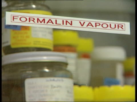 containers filled with human tissue in formalin vapour shelves full of containers pan to bv laboratory technician - human tissue stock videos & royalty-free footage