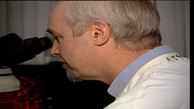 copper used in fight against mrsa southampton university bill keevil looking through microscope computer screen showing length of time infection can... - mrsa stock videos and b-roll footage