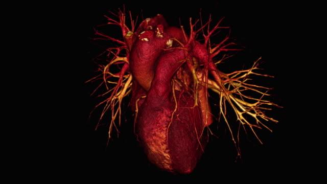 vídeos de stock e filmes b-roll de coronary arteries - tomografia computorizada