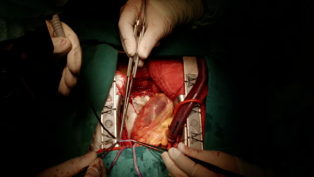 coronary artery bypass grafting - coronary artery stock videos & royalty-free footage