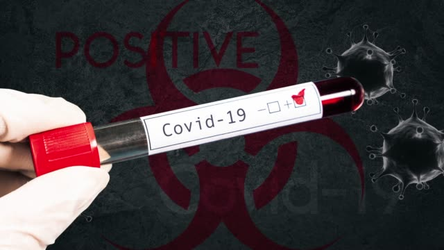 coronavirus (covid-19) blood test positive - positive emotion stock videos & royalty-free footage