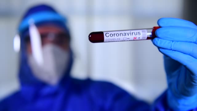 coronavirus covid 19 test novel corona virus - middle east stock videos & royalty-free footage