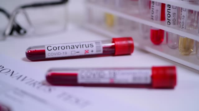 stockvideo's en b-roll-footage met coronavirus covid 19 test nieuwe corona virus - bloed