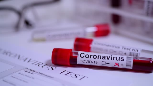 coronavirus covid 19 test novel corona virus - testing kit stock videos & royalty-free footage