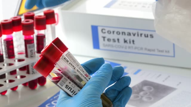 coronavirus covid 19 testing samples in laboratory - kit di analisi video stock e b–roll
