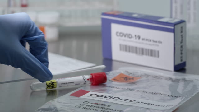 stockvideo's en b-roll-footage met coronavirus covid-19 test kit on lab table - testkit