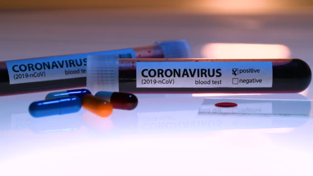 coronavirus - coronavirus stock videos & royalty-free footage