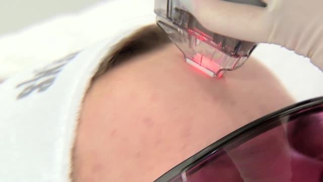 cosmetic laser procedure - laser stock videos & royalty-free footage