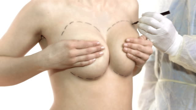 hd dolly: cosmetic surgeon drawing marks on breasts - breast augmentation stock videos and b-roll footage