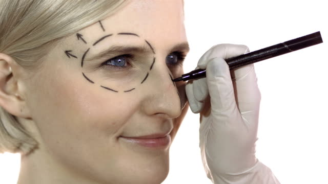 hd: cosmetic surgeon drawing marks on face - eyelid stock videos and b-roll footage