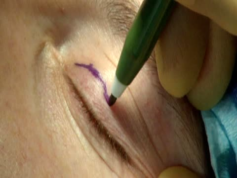 cosmetic surgeon draws lines on a patient's eyelid in preparation for surgery - eyelid stock videos and b-roll footage